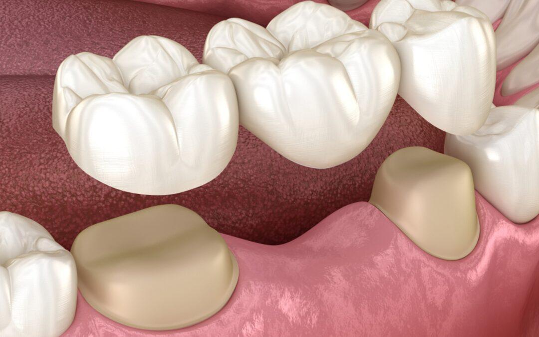 dental bridge procedure what should you expect
