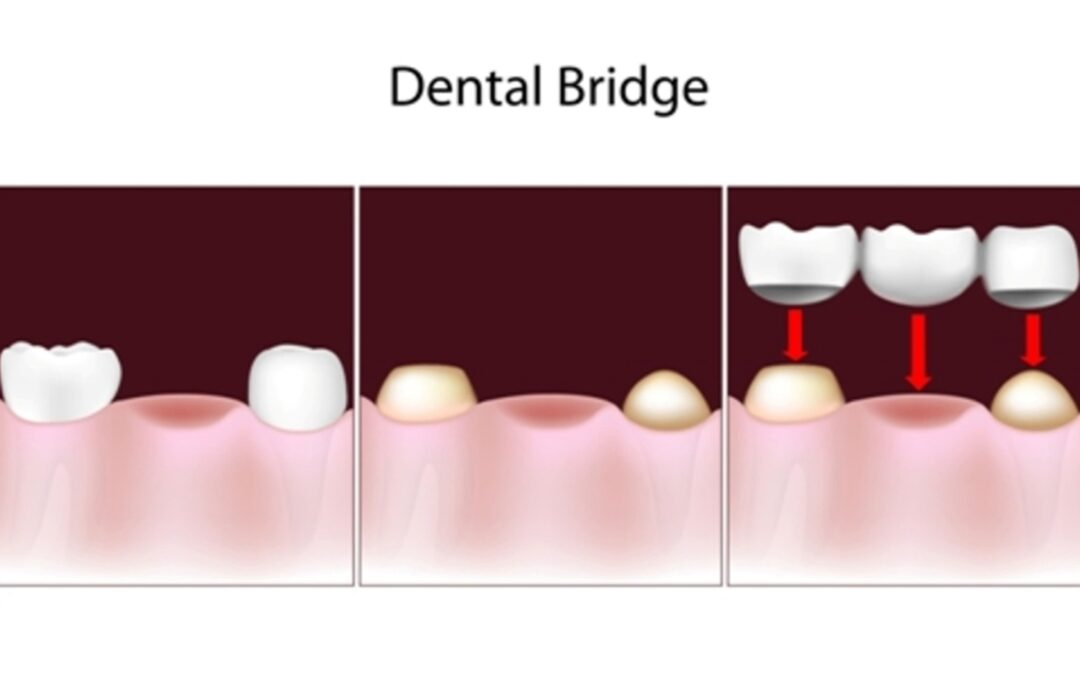 dental bridges are a solution for missing teeth